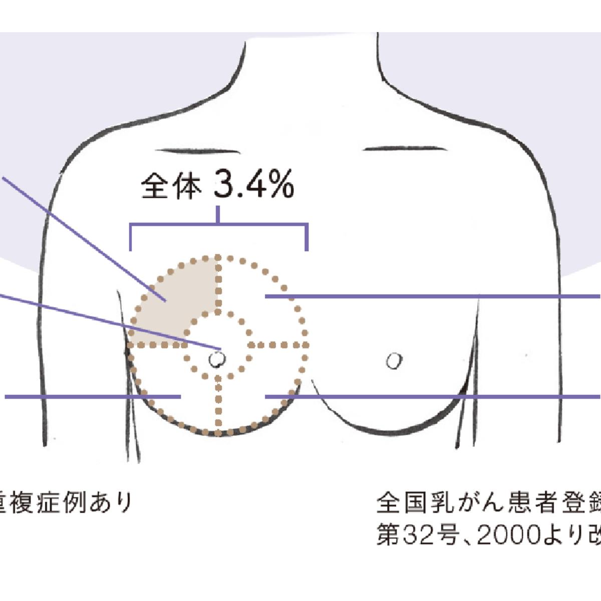 胸 痛む 左 が 胸(右胸・左胸・真ん中)がズキズキ痛む原因と対処法